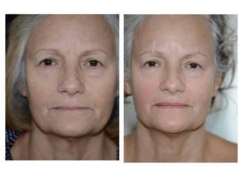 Rejuvenecer sin cirugía ¿Es posible?