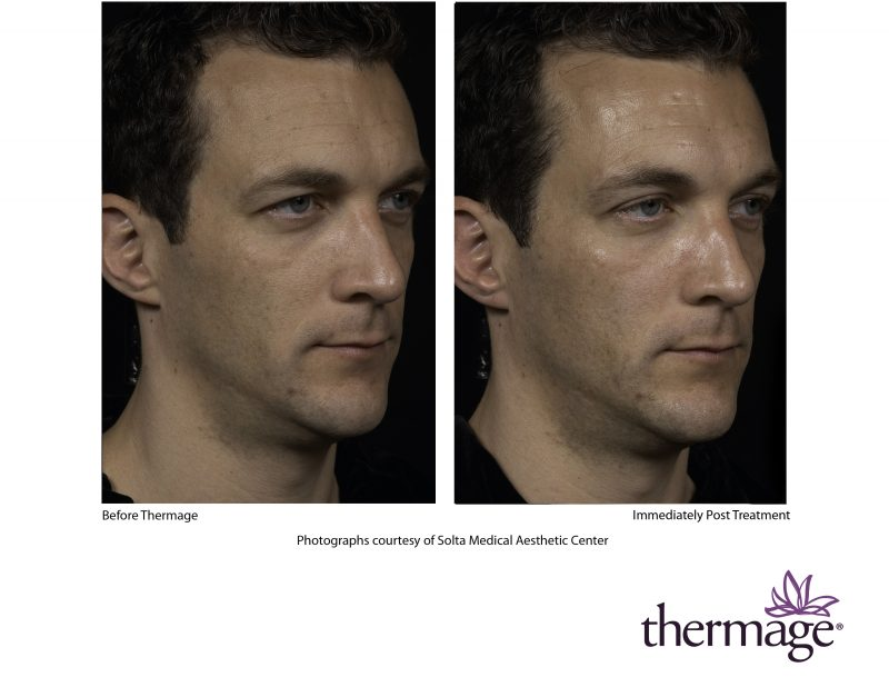 Thermage y Dra Silvestre