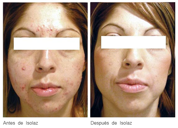 Antes y Después del tratamiento con ISOLAZ