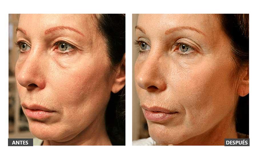 Antes y después de un Thermage de párpados