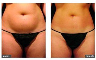 Antes y Después del tratamiento con VelaShape III