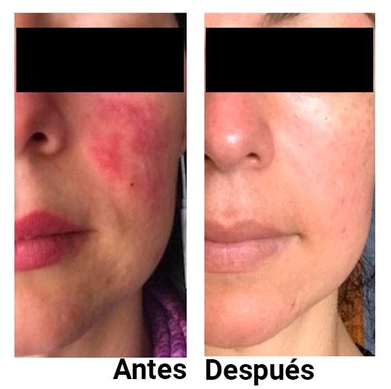 Rosacea antes y después