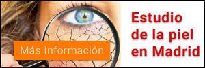 Estudio de la piel en Madrid
